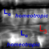 Surface-Assisted Monodomain Formation of a Lyotropic Liquid Crystal